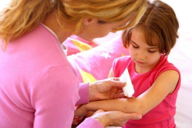 Atopowe zapalenie skóry u dzieci starszych pojawia się m. in. na zgięciach łokci i kolan