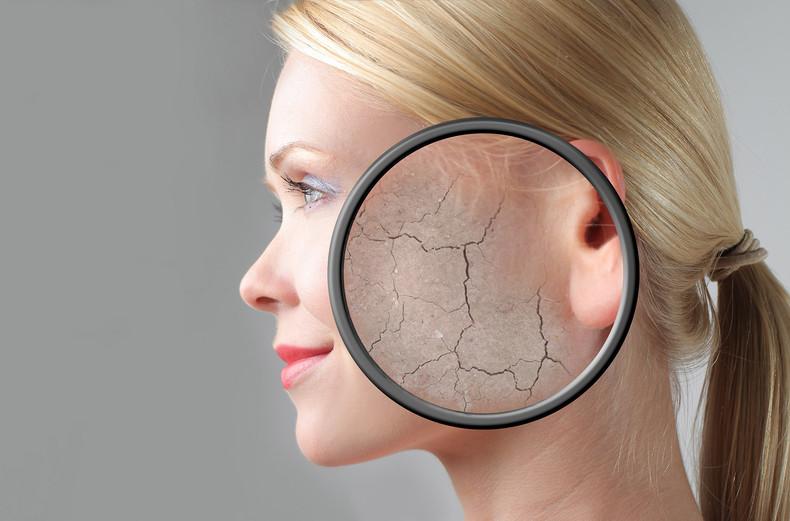 Zimno wywiera negatywny wpływ na skórę