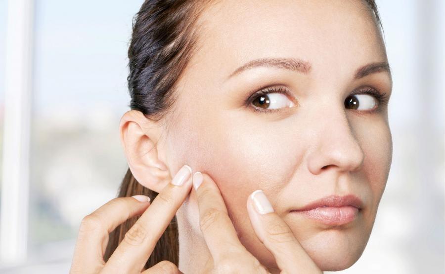 Trądzik u dorosłych kobiet lokalizuje się zazwyczaj w okolicach żuchwy, szyi i brody