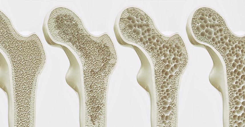 Porównanie zdrowych i chorych kości