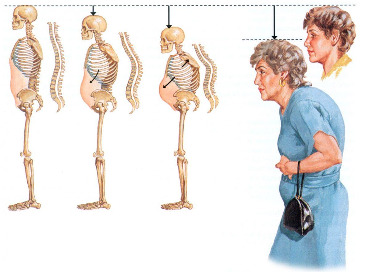 W wyniku schorzenia plecy mogą stać się zaokrąglone