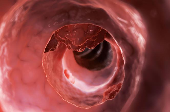 Probiotyki z kwasem lekowym mogą pomóc w profilaktyce raka jelita grubego