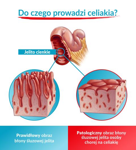 Różnica w wyglądzie jelita osoby zdrowej i chorej na celiakię
